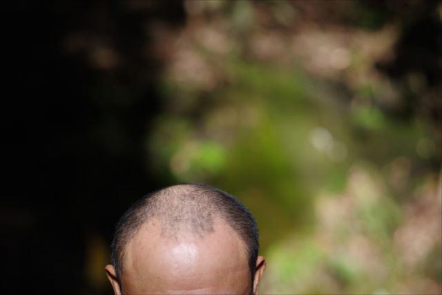 若くてもagaになる!?薄毛の進行を抑えるために大切なこと